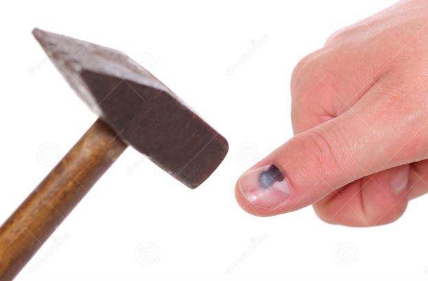 il-martello-ed-il-dito-con-il-nero-hanno-battuto-l-unghia-su-fondo-bianco-42398492